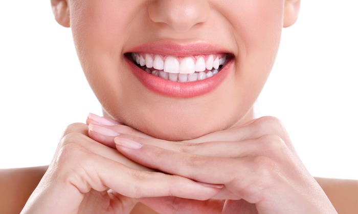 Whitening Teeth – Should You Get Yours Whitened?